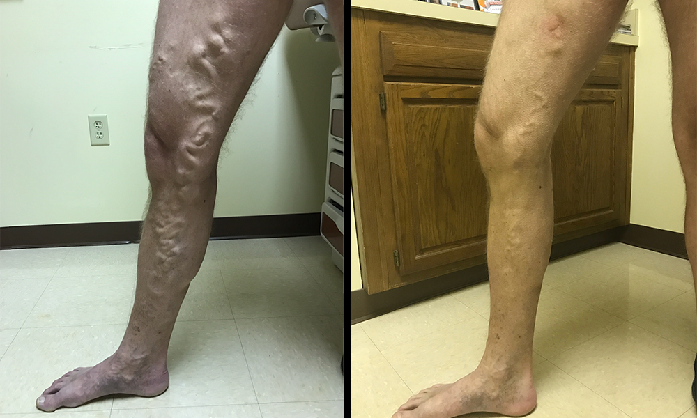 Vein-Before-After
